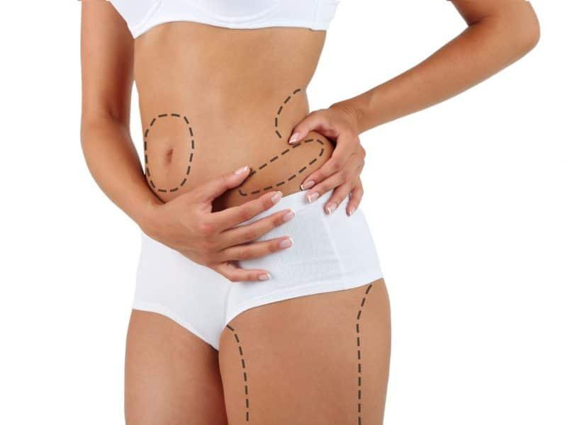 Lazer Liposuction Hakkında Genel Bilgiler